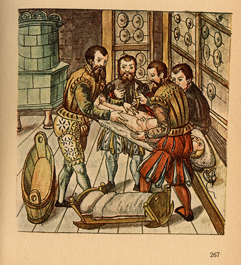 <p>Fig. 1. Image showing surgical preparation for testicular castration, from Caspar Stromayr&#39;s <em>Practica copiosa,</em> written in Lindau and completed in 1559, with caption that reads:, &#34;Dise Figur ziagt gar Eben/ Wie die Kinder sein zu legen&#34; (This figure shows exactly how to lay the children down.) The original is extant in Leipzig, Frankfurt am Main, at the Deutsche Nationalbibliothek. Reproduced from <em>Die Handscrift des Schnitt- und Augenarztes Caspar Stromayr in Linden im Bodensee in der Lindauer Handscrift (P.I. 46) vom 4. Juli 1559</em>, edited by Walter von Brunn (Berlin: Idra, 1925), plate 8 (p. 267).</p>